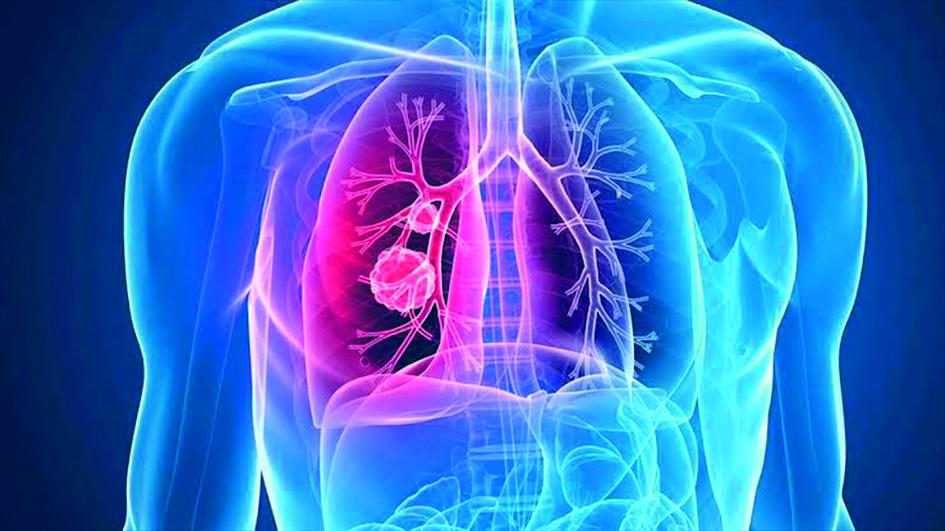 Bu besinler akciğer kanserine savaş açıyor! İşte o besinler