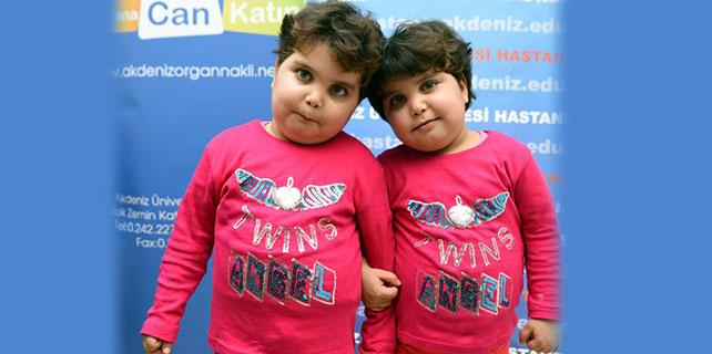 İkizler organ nakli ile hayat buldu