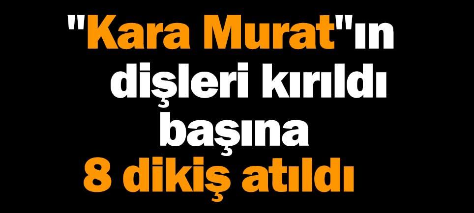 """""""Kara Murat""""ın dişleri kırıldı, başına 8 dikiş atıldı"""