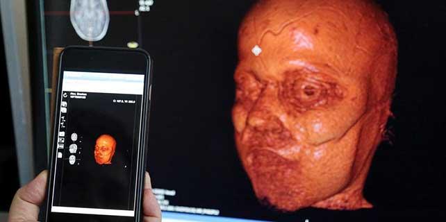 Akıllı telefonla hastalık teşhisi