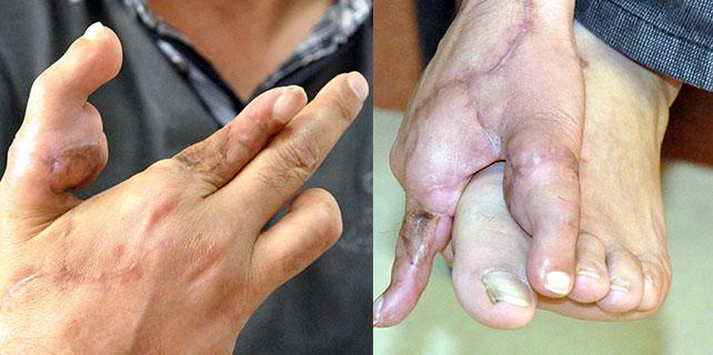Ayak parmağı eline nakledildi