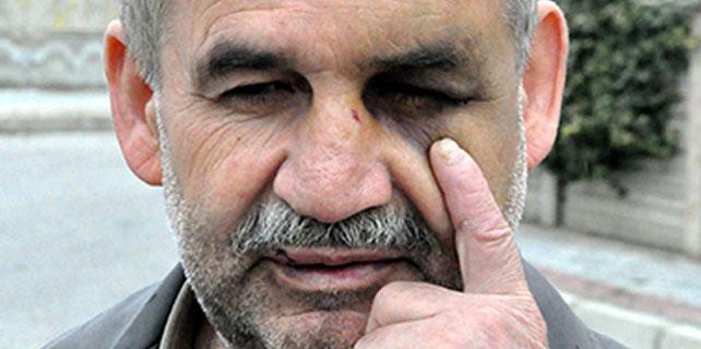 """Konya'da görme engelliye """"adres"""" dayağı iddiası"""