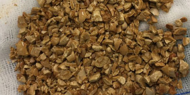 Mesanesinden 1 kilo taş çıktı