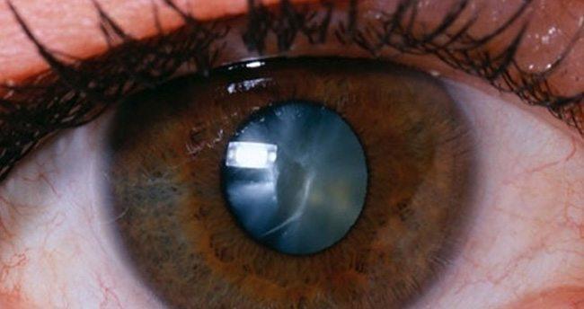 Akıllı telefonlar göz doktoru mu oluyor?