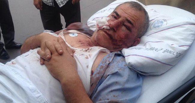 Sivil polisim dedi, kimlik sorulunca komaya soktu