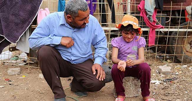 """Suriyeli Emira """"estetik"""" için yardım bekliyor"""