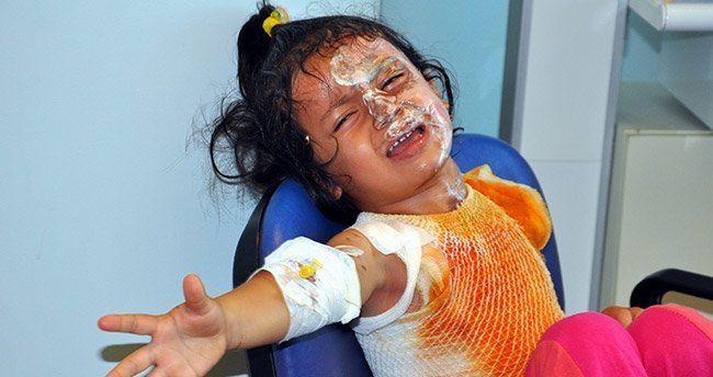 Konya'da üzerine çay dökülen çocuk yandı