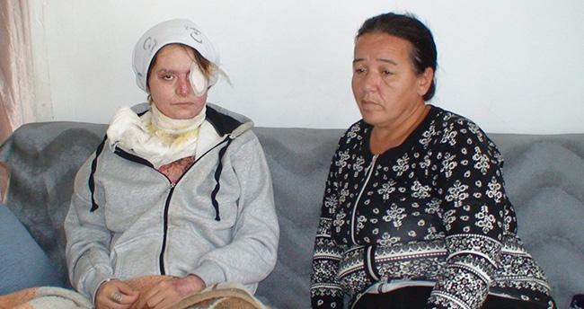 Konya'da Kocasının Kezzapla Yaktığı Kadın Yardım Bekliyor
