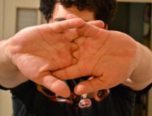 parmak-citlamasinin-gercek-nedeni-10