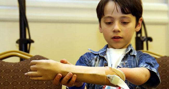 Savaş mağduru Suriyeliler ücretsiz protezlerine kavuşacak