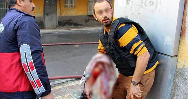 Bağlar'da polis yaralı halde silahı bırakmadı!