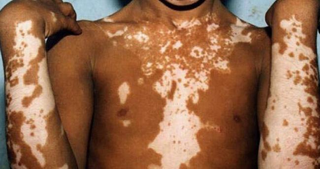 Vitiligo nedir? Nasıl iyileşir?