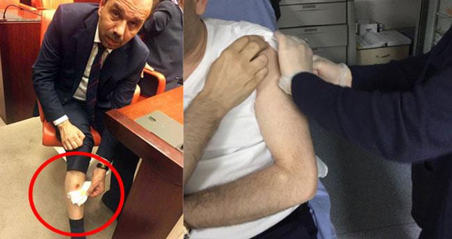 CHP Milletvekili, AK Partili Balta'yı bacağından ısırdı