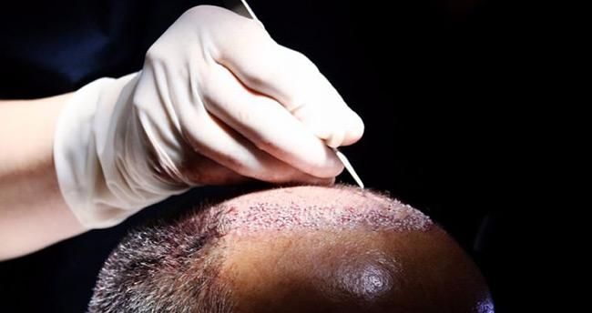 DEAŞ'lı teröristin 'saç ektirme' yalanı