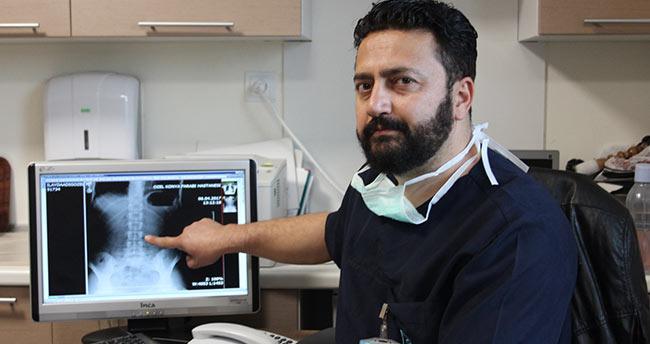 Konya'da bir genç başörtüsü takarken iğne yuttu