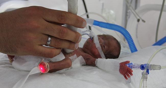 """514 gram doğan bebeğe """"hayat"""" operasyonu"""