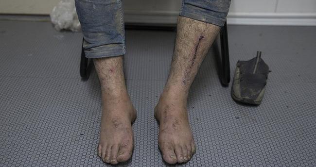 Yunan askerleri tarafından darp edilen mülteciler yaşadıklarını anlattı