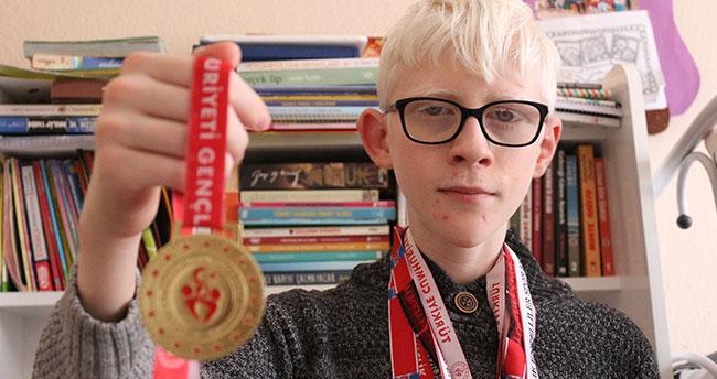 Konya'da yaşayan albinizm hastası Hüseyin Ali azmiyle örnek oluyor