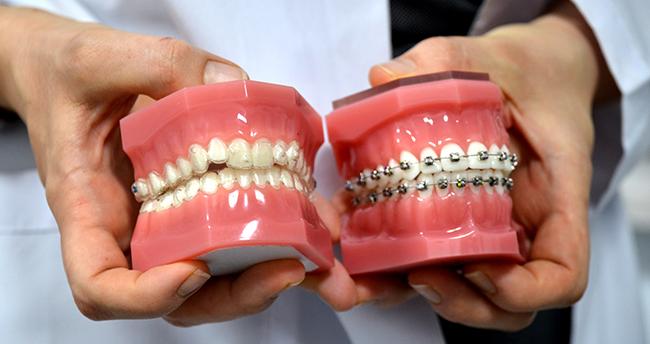 """""""Şeffaf plak"""" uygulaması hastaları """"diş teli"""" tedavisinin zahmetinden kurtarıyor"""